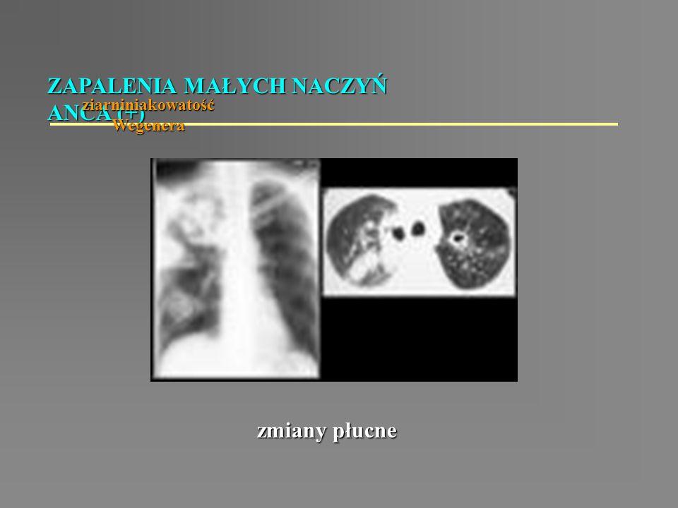 ZAPALENIA MAŁYCH NACZYŃ ANCA (+) ziarniniakowatość Wegenera zmiany płucne