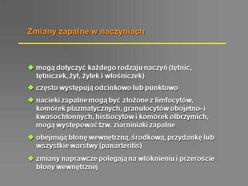  bardzo rzadko występujący zespół chorobowy, różni się od klasycznej postaci guzkowego zapalenia tętnic częstym skojarzeniem z astmą oskrzelową oraz zmianami w górnych drogach  charakterystyczną cecha rozmazu krwi obwodowej - eozynofilia o 1.500 do 29000 X 10 6 /L  ziarniniaki złożone głównie z eozynofili, powstają w łączności z naczyniami i pozanaczyniowo, w tkankach może dochodzić do powstawania nacieków eozynofilowych  u ok.