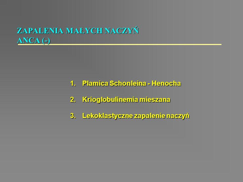 1.Plamica Schonleina - Henocha 2.Krioglobulinemia mieszana 3.Lekoklastyczne zapalenie naczyń ZAPALENIA MAŁYCH NACZYŃ ANCA (-)
