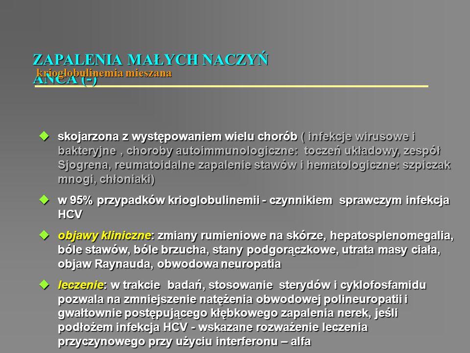  skojarzona z występowaniem wielu chorób ( infekcje wirusowe i bakteryjne, choroby autoimmunologiczne: toczeń układowy, zespół Sjogrena, reumatoidaln