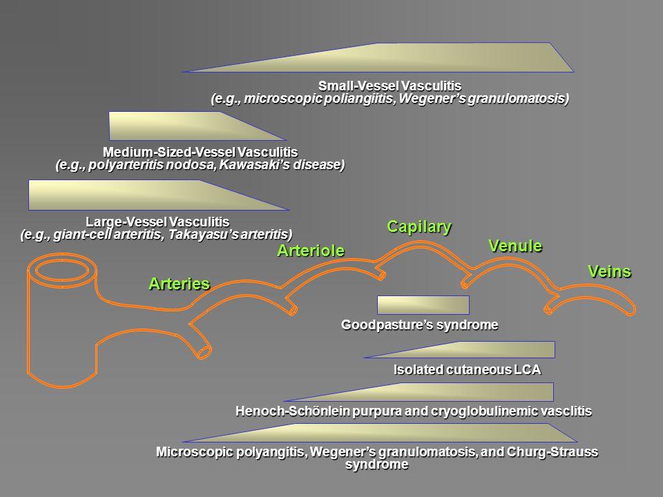  Patogeneza zapaleń naczyń nie jest do końca wyjaśniona PATOGENEZA ZAPALEŃ NACZYŃ  Obecnie uważa się, że istnieją 2 mechanizmy patogenetyczne - odkładanie kompleksów immunologicznych w ścianach naczyń - zapalenie związane z obecnością przeciwciał ANCA (antineutrophil cytoplasmic antibodies)
