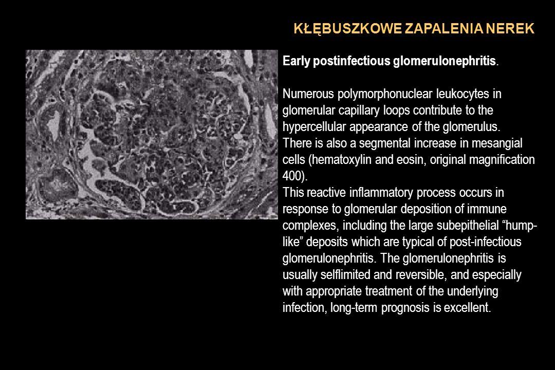 KŁĘBUSZKOWE ZAPALENIA NEREK Early postinfectious glomerulonephritis. Numerous polymorphonuclear leukocytes in glomerular capillary loops contribute to