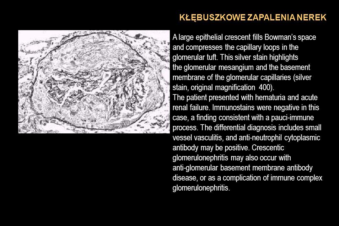 OSTRE ODMIECZNIKOWE ZAPALENIA NEREK - patofizjologia OBJAWY: nagły początek z gorączką, dreszczami i bólem w okolicy lędźwiowej; dyzuria niekiedy nudności, wymioty, wzdęcia Stan ogólny może być ciężki OB przyspieszone Wzór krwinkowy przesunięty w lewo Bad.ogólne moczu: niewielki białkomocz ropomocz bakteriomocz (wałeczki inkrustowane leukocytami)