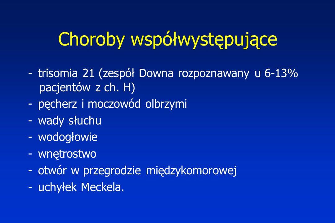 Choroby współwystępujące - trisomia 21 (zespół Downa rozpoznawany u 6-13% pacjentów z ch.