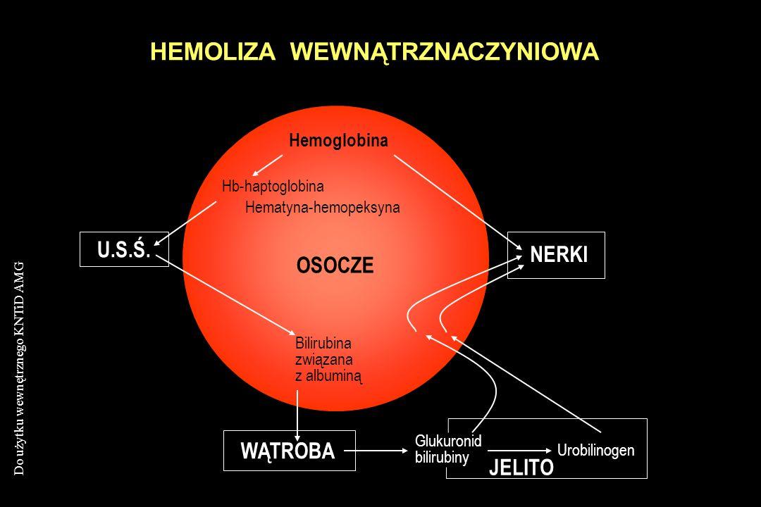 Do użytku wewnętrznego KNTiD AMG HEMOLIZA WEWNĄTRZNACZYNIOWA U.S.Ś. NERKI WĄTROBA JELITO Glukuronid bilirubiny Urobilinogen Hemoglobina Hb-haptoglobin
