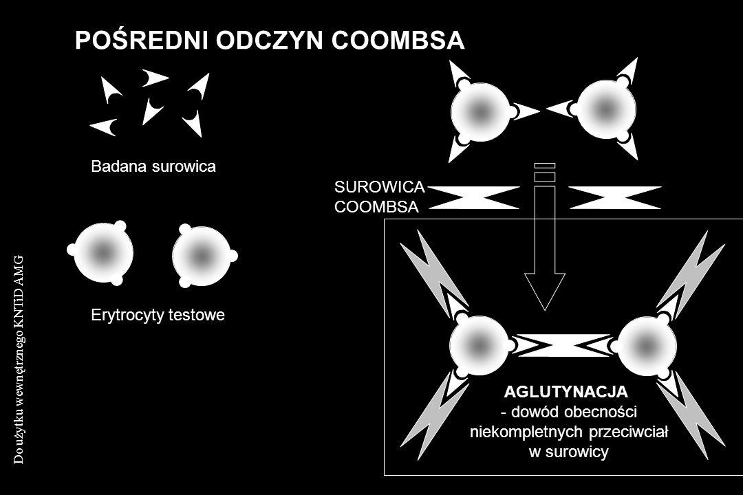 Do użytku wewnętrznego KNTiD AMG POŚREDNI ODCZYN COOMBSA SUROWICA COOMBSA AGLUTYNACJA - dowód obecności niekompletnych przeciwciał w surowicy Badana s