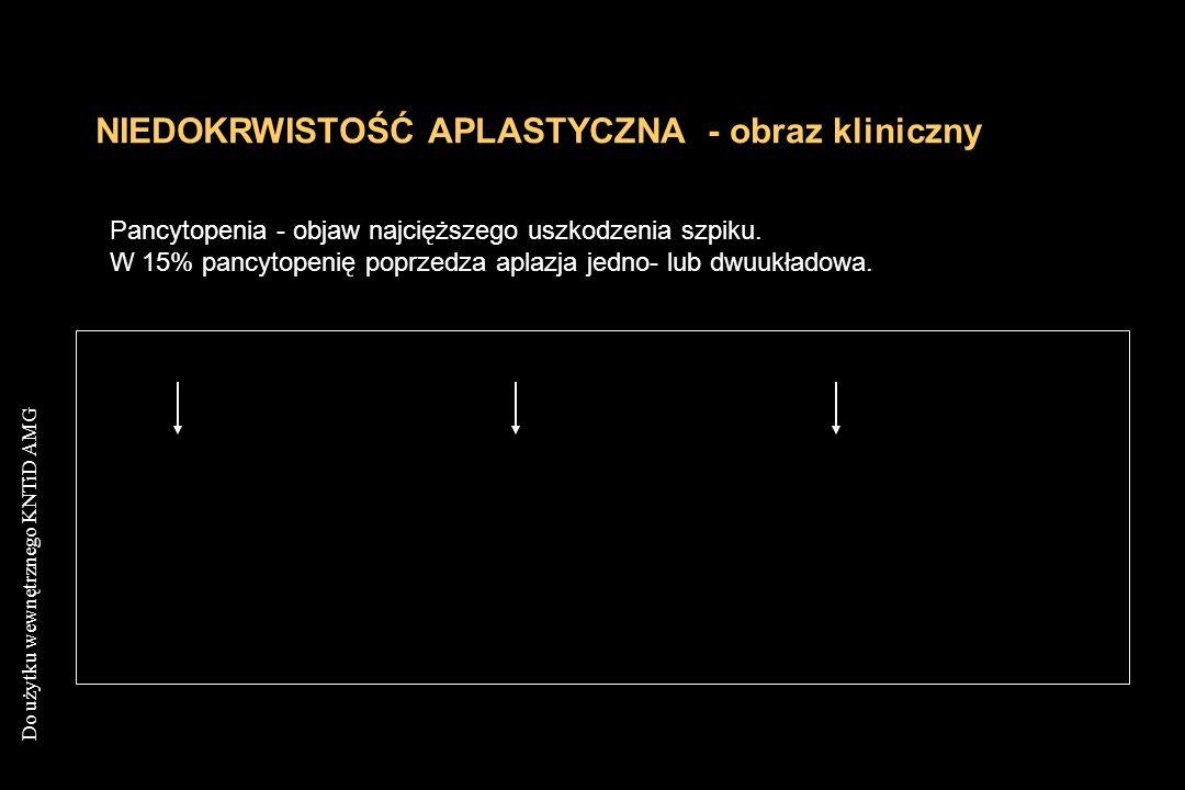 Do użytku wewnętrznego KNTiD AMG NIEDOKRWISTOŚĆ APLASTYCZNA - obraz kliniczny Pancytopenia - objaw najcięższego uszkodzenia szpiku. W 15% pancytopenię