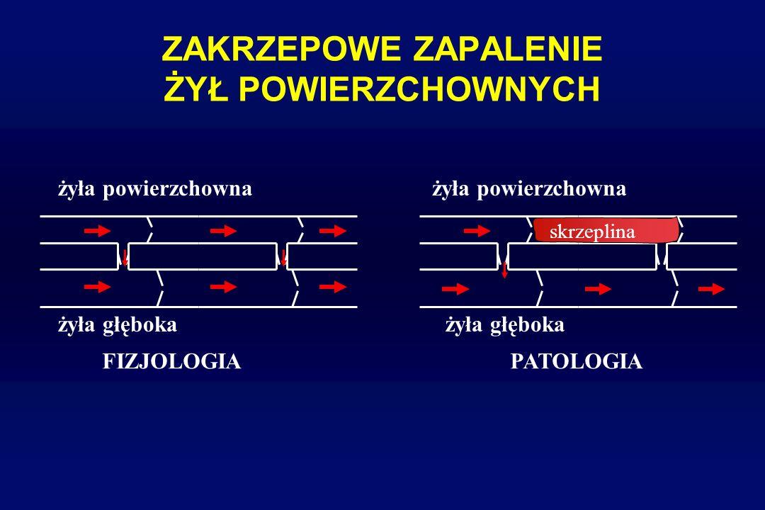 ZAKRZEPOWE ZAPALENIE ŻYŁ POWIERZCHOWNYCH Wędrujące (migrujące) zapalenie zakrzepowe żył powierzchownych - choroba Winiwatera-Bürgera (Bürgera) - objaw (relewator) raka płuca, żołądka, trzustki (zespół Trousseau) - zaburzenie równowagi między czynnikami prokoagulacyjnymi a ich antagonistami - obecność przeciwciał antykardiolipinowych, antykoagulantu tocznia, niedobór białek C, S,