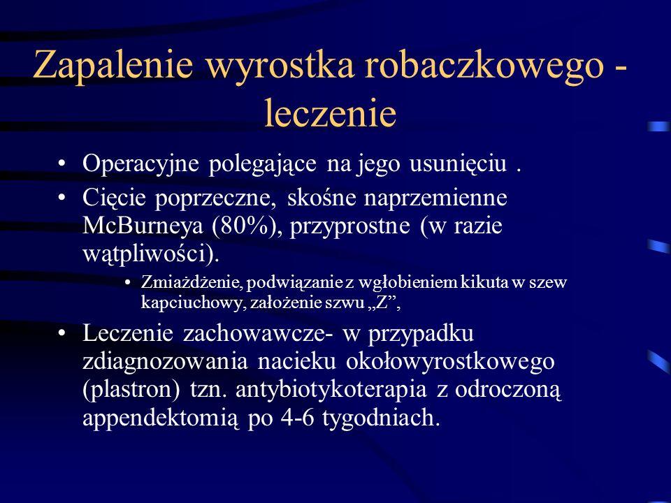 Zapalenie wyrostka robaczkowego - leczenie Operacyjne polegające na jego usunięciu. Cięcie poprzeczne, skośne naprzemienne McBurneya (80%), przyprostn