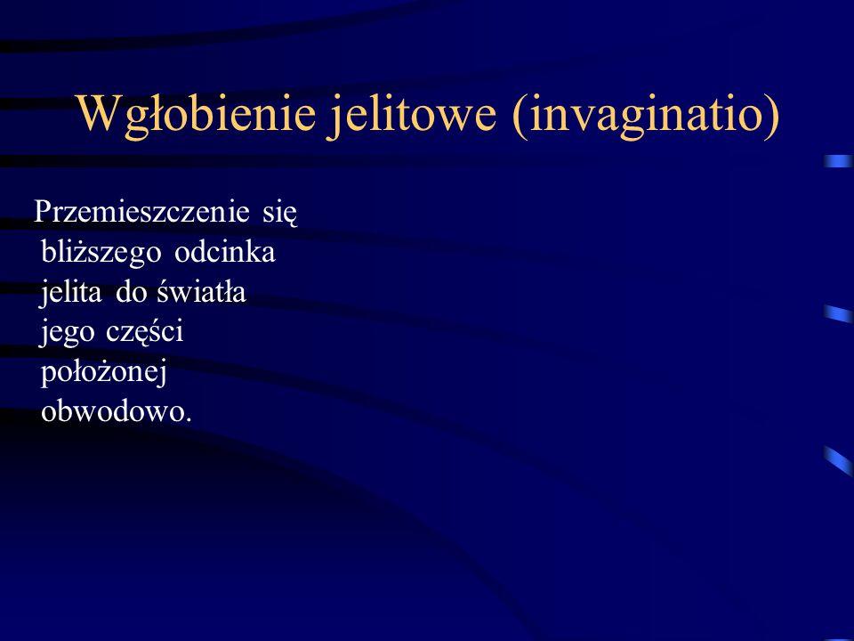 Wgłobienie jelitowe (invaginatio) Przemieszczenie się bliższego odcinka jelita do światła jego części położonej obwodowo.