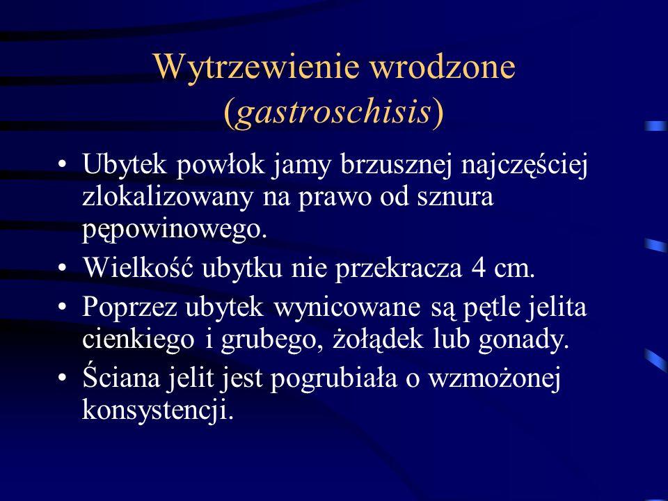 Wytrzewienie wrodzone (gastroschisis) Ubytek powłok jamy brzusznej najczęściej zlokalizowany na prawo od sznura pępowinowego. Wielkość ubytku nie prze