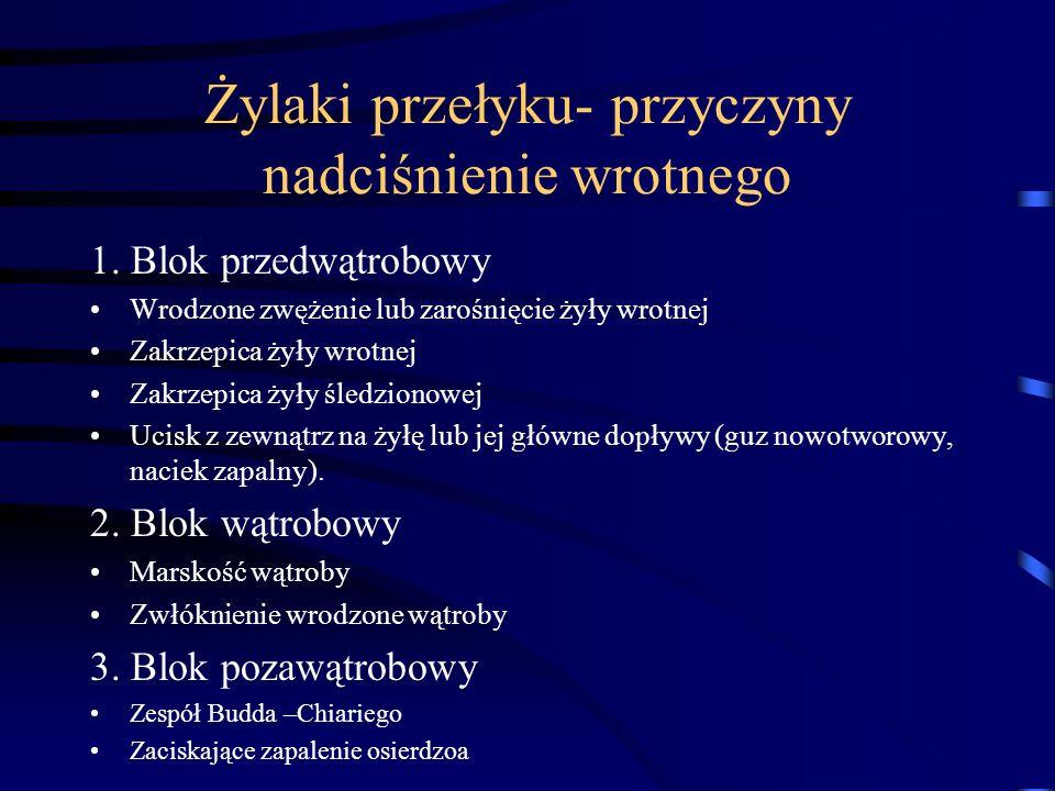 Żylaki przełyku- przyczyny nadciśnienie wrotnego 1. Blok przedwątrobowy Wrodzone zwężenie lub zarośnięcie żyły wrotnej Zakrzepica żyły wrotnej Zakrzep