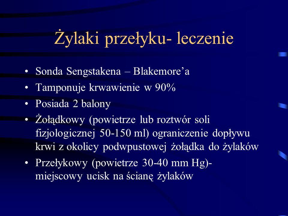 Żylaki przełyku- leczenie Sonda Sengstakena – Blakemore'a Tamponuje krwawienie w 90% Posiada 2 balony Żołądkowy (powietrze lub roztwór soli fizjologic