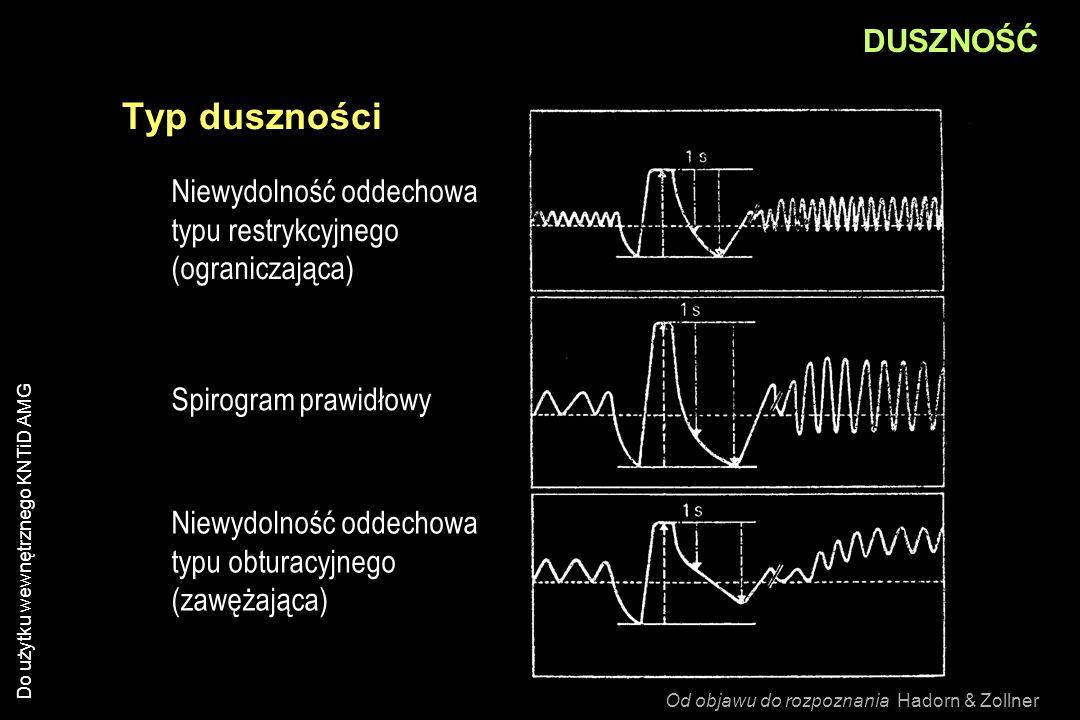 Do użytku wewnętrznego KNTiD AMG DUSZNOŚĆ Typ duszności Niewydolność oddechowa typu restrykcyjnego (ograniczająca) Niewydolność oddechowa typu obturac
