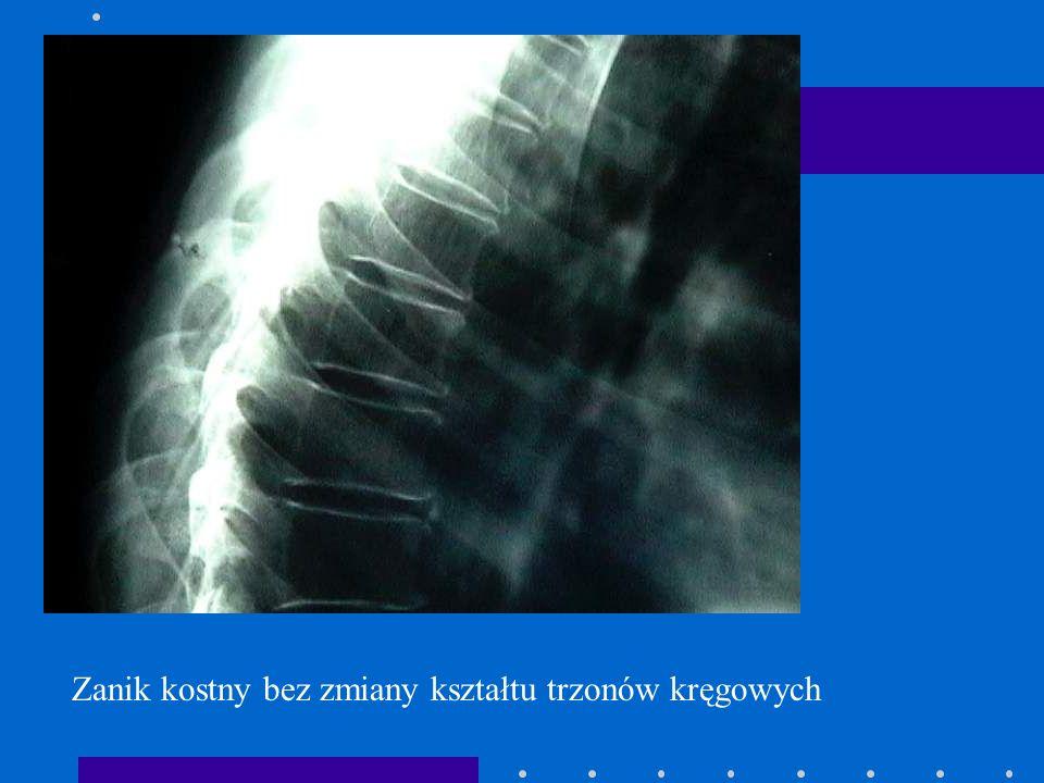 Zanik kostny bez zmiany kształtu trzonów kręgowych