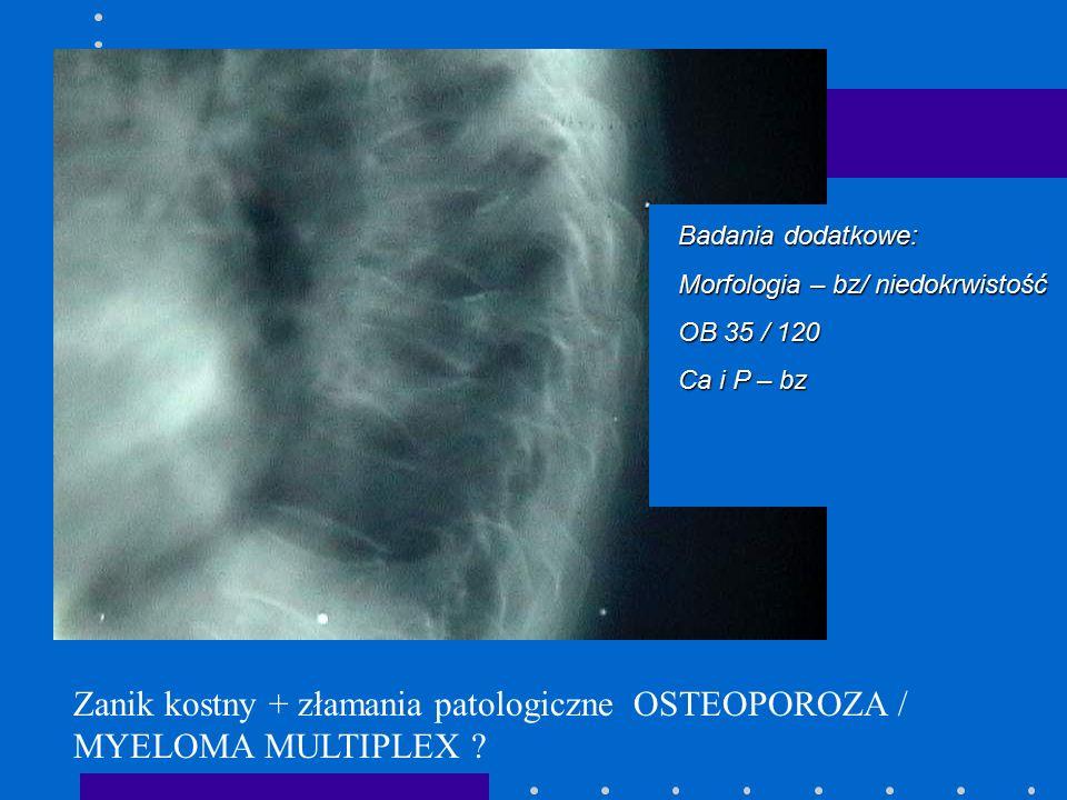 Zanik kostny + złamania patologiczne OSTEOPOROZA / MYELOMA MULTIPLEX ? Badania dodatkowe: Morfologia – bz/ niedokrwistość OB 35 / 120 Ca i P – bz