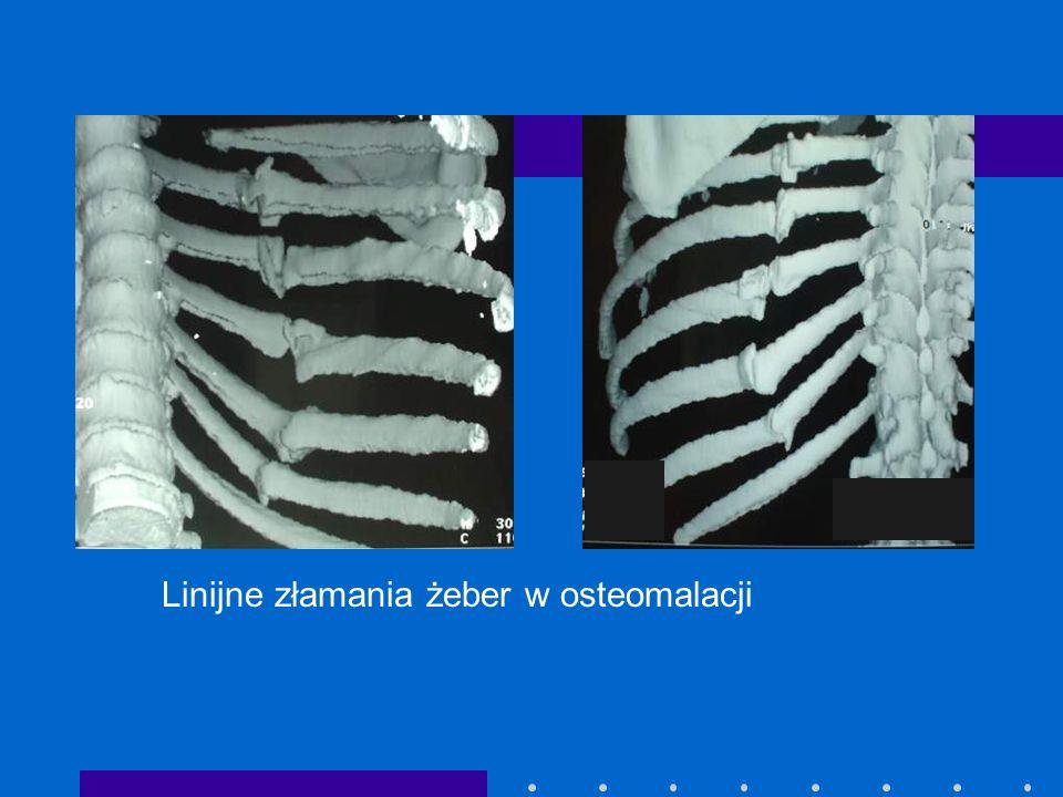 Linijne złamania żeber w osteomalacji
