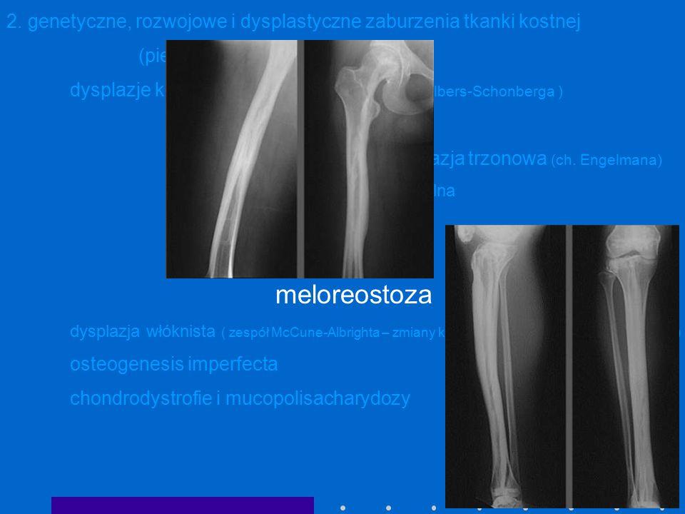2. genetyczne, rozwojowe i dysplastyczne zaburzenia tkanki kostnej (pierwotne zaburzenia kostnienia) dysplazje kostniejące:osteopetroza ( ch. Albers-S