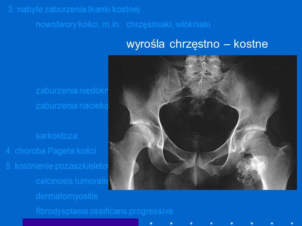 3. nabyte zaburzenia tkanki kostnej nowotwory kości, m.in.chrzęstniaki, włókniaki wyrośla chrzęstno – kostne guz olbrzymiokomórkowy guzy złośliwe ( os