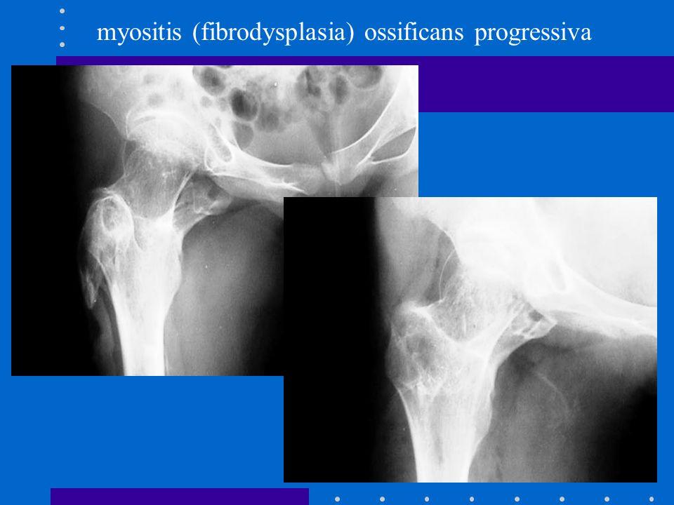 myositis (fibrodysplasia) ossificans progressiva