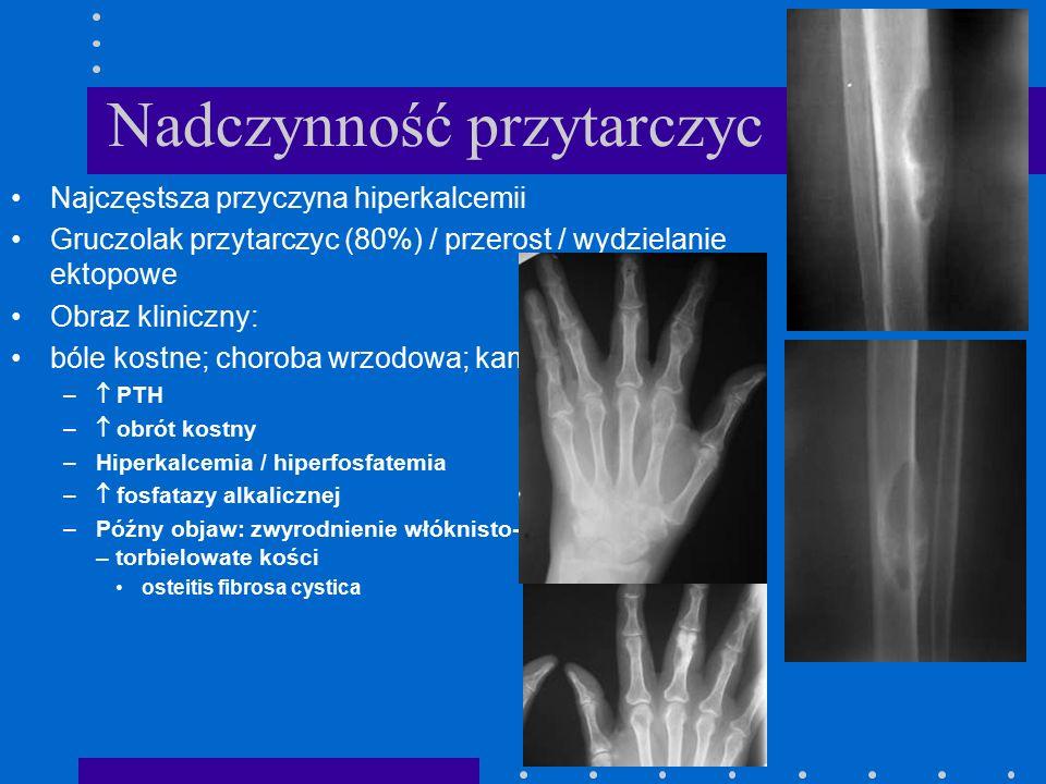 Nadczynność przytarczyc Najczęstsza przyczyna hiperkalcemii Gruczolak przytarczyc (80%) / przerost / wydzielanie ektopowe Obraz kliniczny: bóle kostne