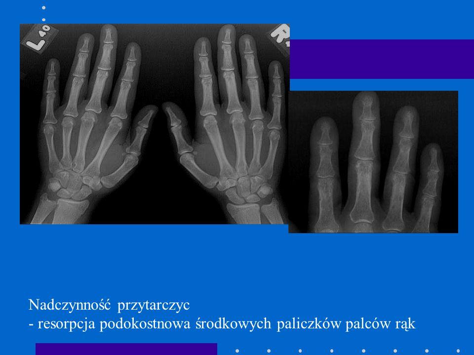 Nadczynność przytarczyc - resorpcja podokostnowa środkowych paliczków palców rąk