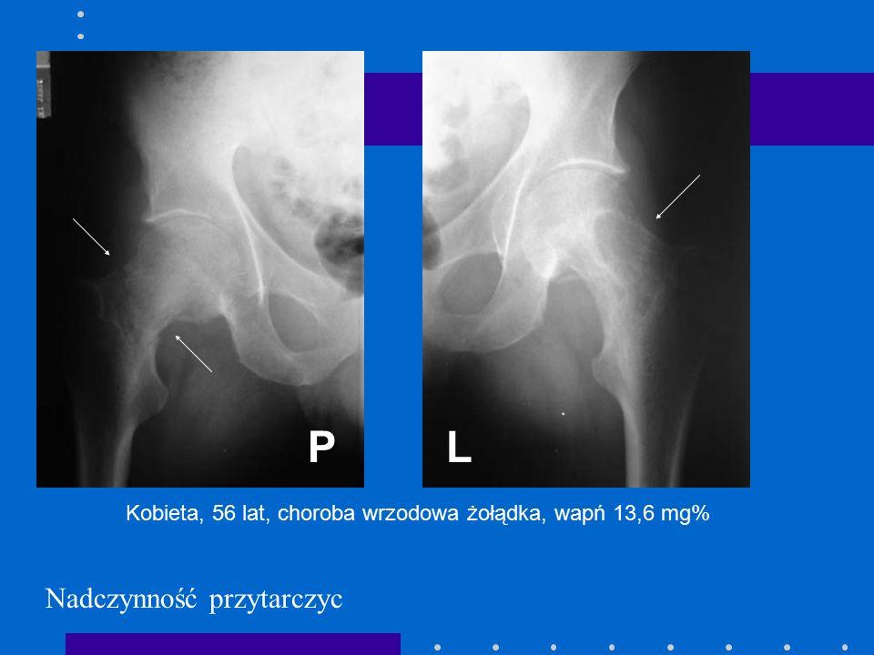 Nadczynność przytarczyc LP Kobieta, 56 lat, choroba wrzodowa żołądka, wapń 13,6 mg%
