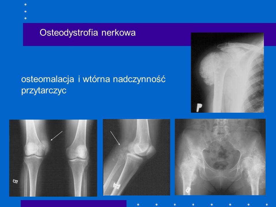 Osteodystrofia nerkowa osteomalacja i wtórna nadczynność przytarczyc
