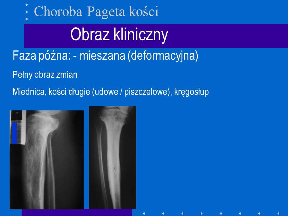 Obraz kliniczny Faza późna: - mieszana (deformacyjna) Pełny obraz zmian Miednica, kości długie (udowe / piszczelowe), kręgosłup Choroba Pageta kości