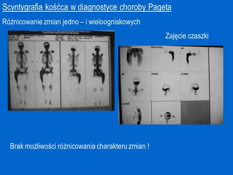 Scyntygrafia kośćca w diagnostyce choroby Pageta Różnicowanie zmian jedno – i wieloogniskowych Zajęcie czaszki Brak możliwości różnicowania charakteru