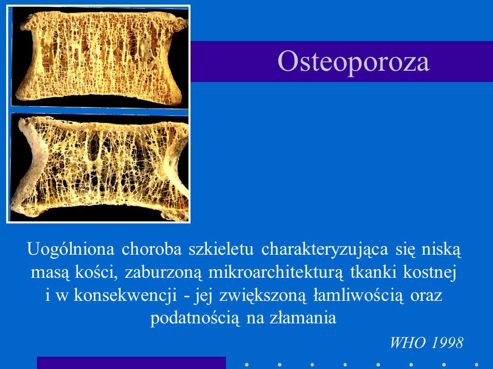 Osteoporoza Uogólniona choroba szkieletu charakteryzująca się niską masą kości, zaburzoną mikroarchitekturą tkanki kostnej i w konsekwencji - jej zwię
