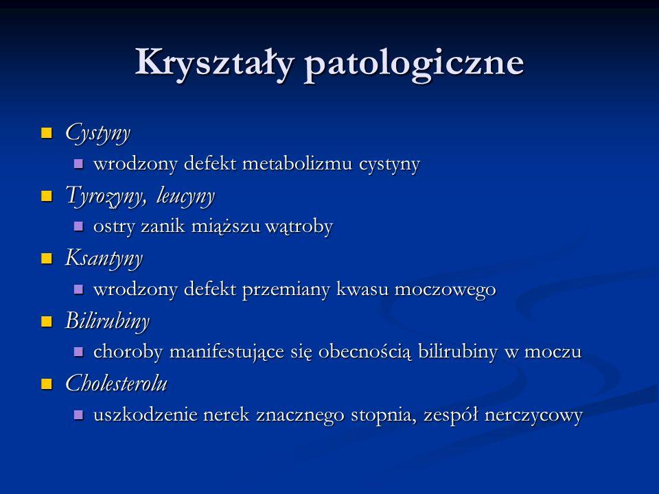 Kryształy patologiczne Cystyny Cystyny wrodzony defekt metabolizmu cystyny wrodzony defekt metabolizmu cystyny Tyrozyny, leucyny Tyrozyny, leucyny ost