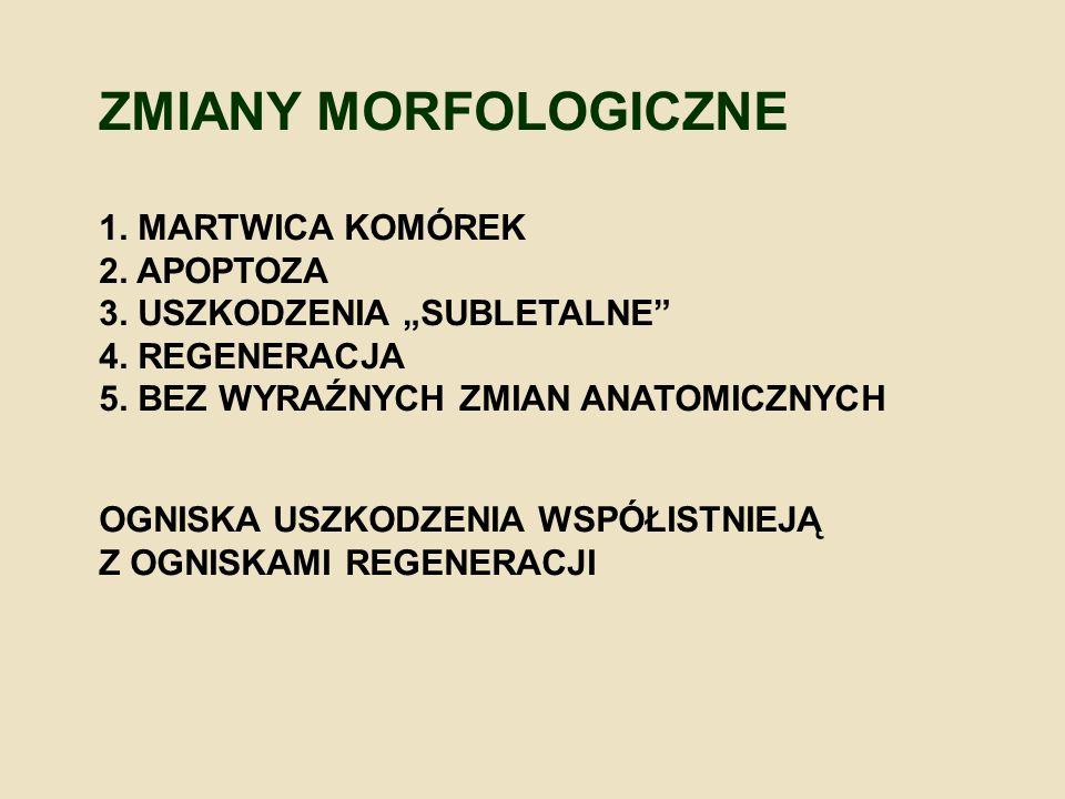 """ZMIANY MORFOLOGICZNE 1. MARTWICA KOMÓREK 2. APOPTOZA 3. USZKODZENIA """"SUBLETALNE"""" 4. REGENERACJA 5. BEZ WYRAŹNYCH ZMIAN ANATOMICZNYCH OGNISKA USZKODZEN"""