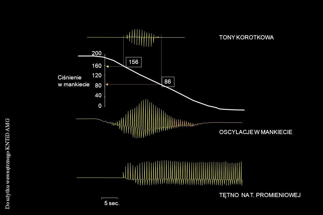 Do użytku wewnętrznego KNTiD AMG TONY KOROTKOWA Ciśnienie w mankiecie OSCYLACJE W MANKIECIE TĘTNO NA T. PROMIENIOWEJ 5 sec. 86 156 200 160 120 80 40 0