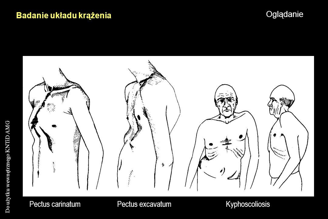 Do użytku wewnętrznego KNTiD AMG Pectus carinatumPectus excavatumKyphoscoliosis Badanie układu krążenia Oglądanie