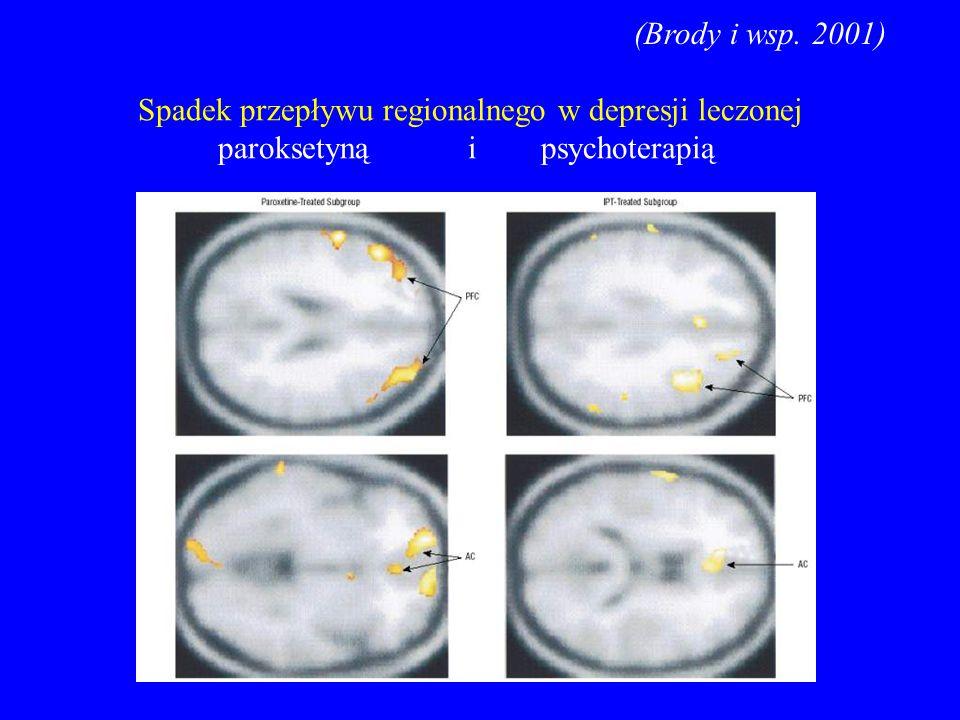 (Brody i wsp. 2001) Spadek przepływu regionalnego w depresji leczonej paroksetyną i psychoterapią