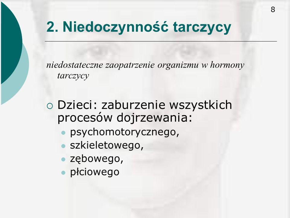 29 4.U noworodka z wrodzoną niedoczynnością tarczycy mogą wystąpić następujące objawy: : 1.