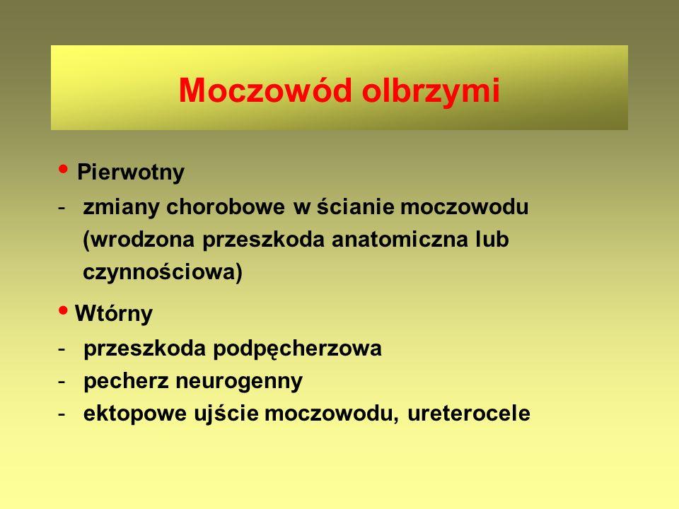 Pierwotny -zmiany chorobowe w ścianie moczowodu (wrodzona przeszkoda anatomiczna lub czynnościowa) Wtórny -przeszkoda podpęcherzowa -pecherz neurogenn