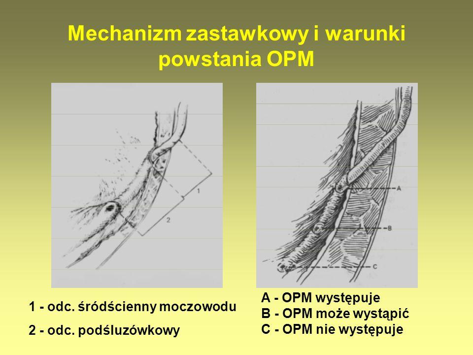 1 - odc. śródścienny moczowodu 2 - odc. podśluzówkowy A - OPM występuje B - OPM może wystąpić C - OPM nie występuje Mechanizm zastawkowy i warunki pow