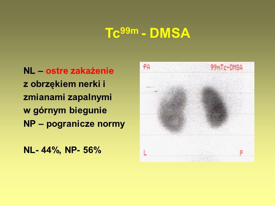 NL – ostre zakażenie z obrzękiem nerki i zmianami zapalnymi w górnym biegunie NP – pogranicze normy NL- 44%, NP- 56% Tc 99m - DMSA