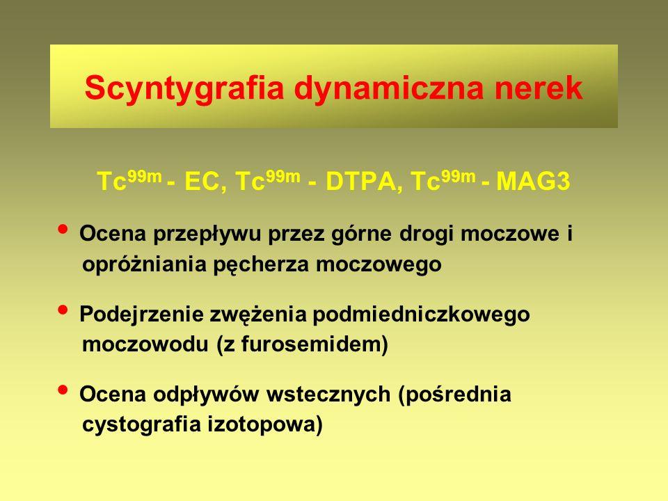 Tc 99m - EC, Tc 99m - DTPA, Tc 99m - MAG3 Ocena przepływu przez górne drogi moczowe i opróżniania pęcherza moczowego Podejrzenie zwężenia podmiedniczk