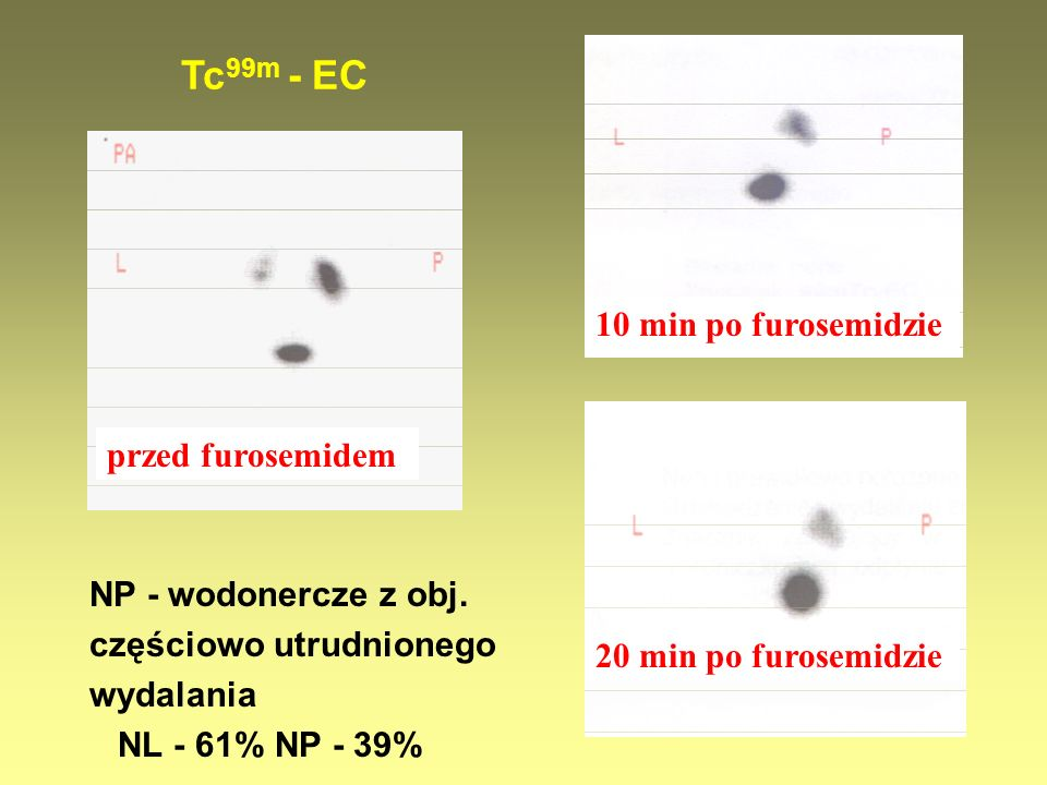 NP - wodonercze z obj. częściowo utrudnionego wydalania NL - 61% NP - 39% Tc 99m - EC przed furosemidem 10 min po furosemidzie 20 min po furosemidzie