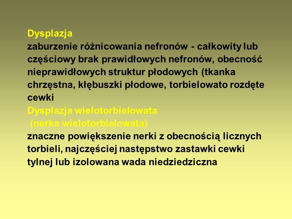 Przewlekłe odmiedniczkowe zapalenie nerek (POZN) Utrwalone blizny w miąższu nerek w badaniu izotopowym Białkomocz Upośledzenie zdolności zagęszczania moczu Poliuria z utratą sodu Zaburzenia równowagi kwasowo-zasadowej Nadciśnienie tętnicze