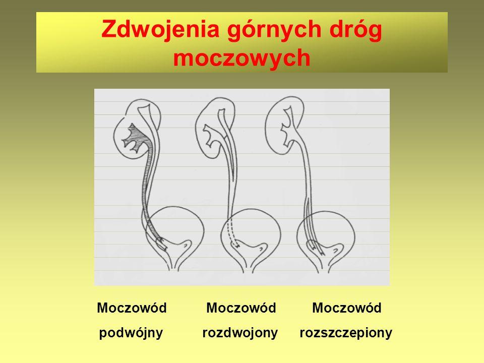 Zdwojenia górnych dróg moczowych Moczowód Moczowód Moczowód podwójny rozdwojony rozszczepiony