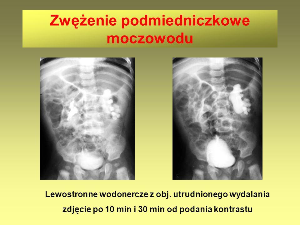 Lewostronne wodonercze z obj. utrudnionego wydalania zdjęcie po 10 min i 30 min od podania kontrastu Zwężenie podmiedniczkowe moczowodu