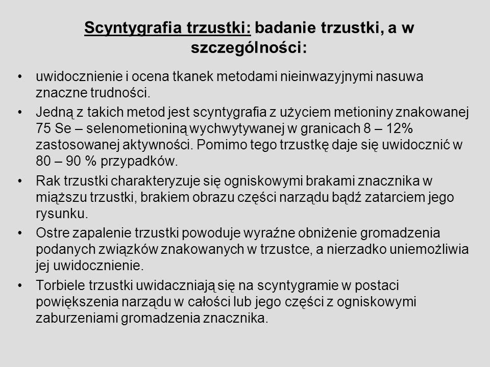 Scyntygrafia trzustki: badanie trzustki, a w szczególności: uwidocznienie i ocena tkanek metodami nieinwazyjnymi nasuwa znaczne trudności.