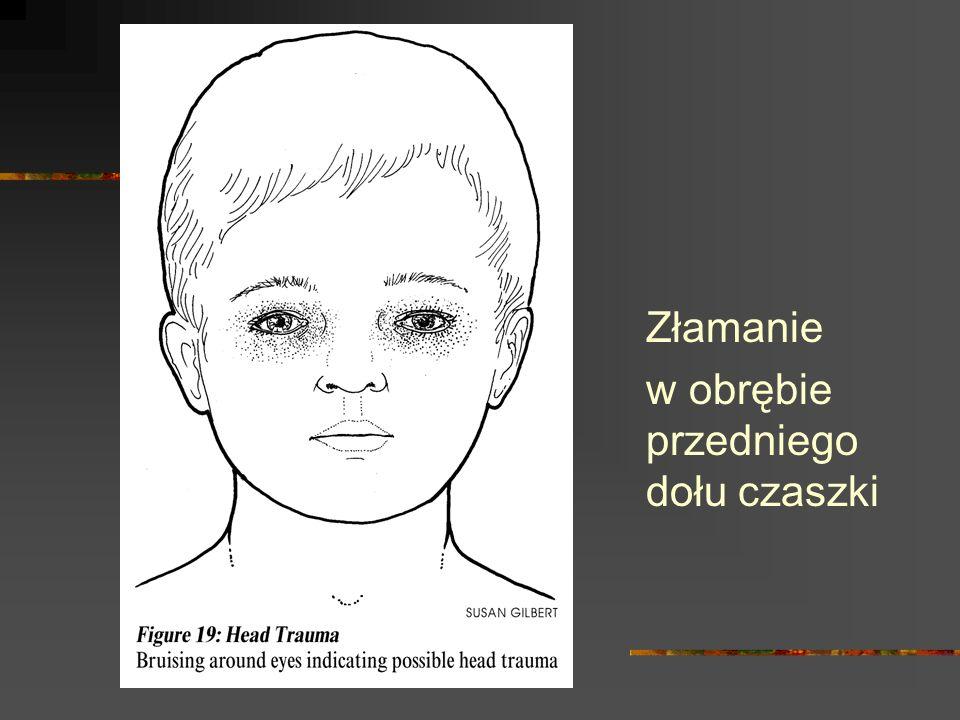 Złamanie w obrębie przedniego dołu czaszki