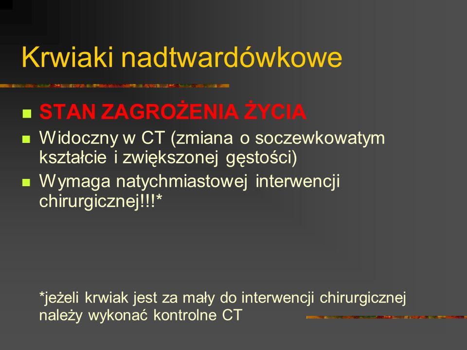 Krwiaki nadtwardówkowe STAN ZAGROŻENIA ŻYCIA Widoczny w CT (zmiana o soczewkowatym kształcie i zwiększonej gęstości) Wymaga natychmiastowej interwencj