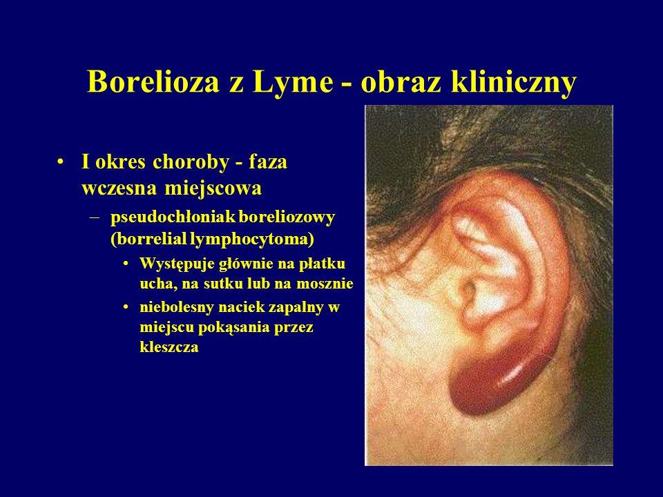Borelioza z Lyme - obraz kliniczny I okres choroby - faza wczesna miejscowa –pseudochłoniak boreliozowy (borrelial lymphocytoma) Występuje głównie na
