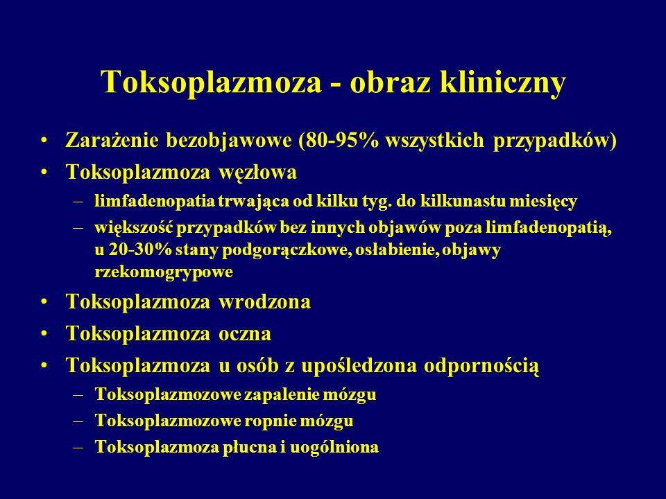 Toksoplazmoza - obraz kliniczny Zarażenie bezobjawowe (80-95% wszystkich przypadków) Toksoplazmoza węzłowa –limfadenopatia trwająca od kilku tyg. do k